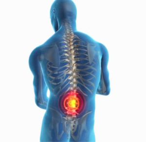 cómo aliviar dolor de espalda