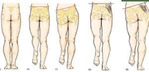 solución al dolor de espalda